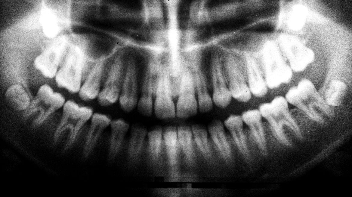 Cover Photo: An x-ray image of a set of adult teeth