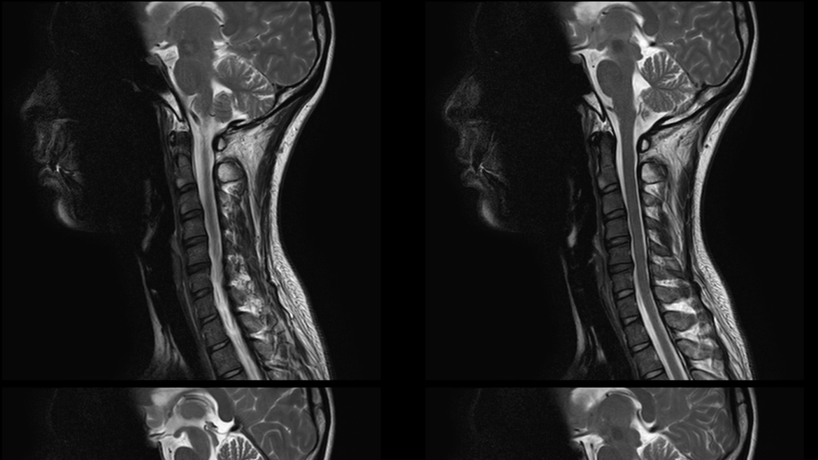 Cover Photo: Aisha Hassan's spinal scans in black in white, copied side by side.