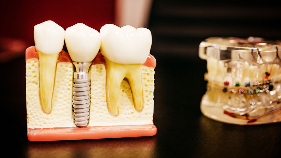 Cover Photo: A plastic cross-section of teeth in the jaw, the kind used by dentists to demonstrate dental surgery